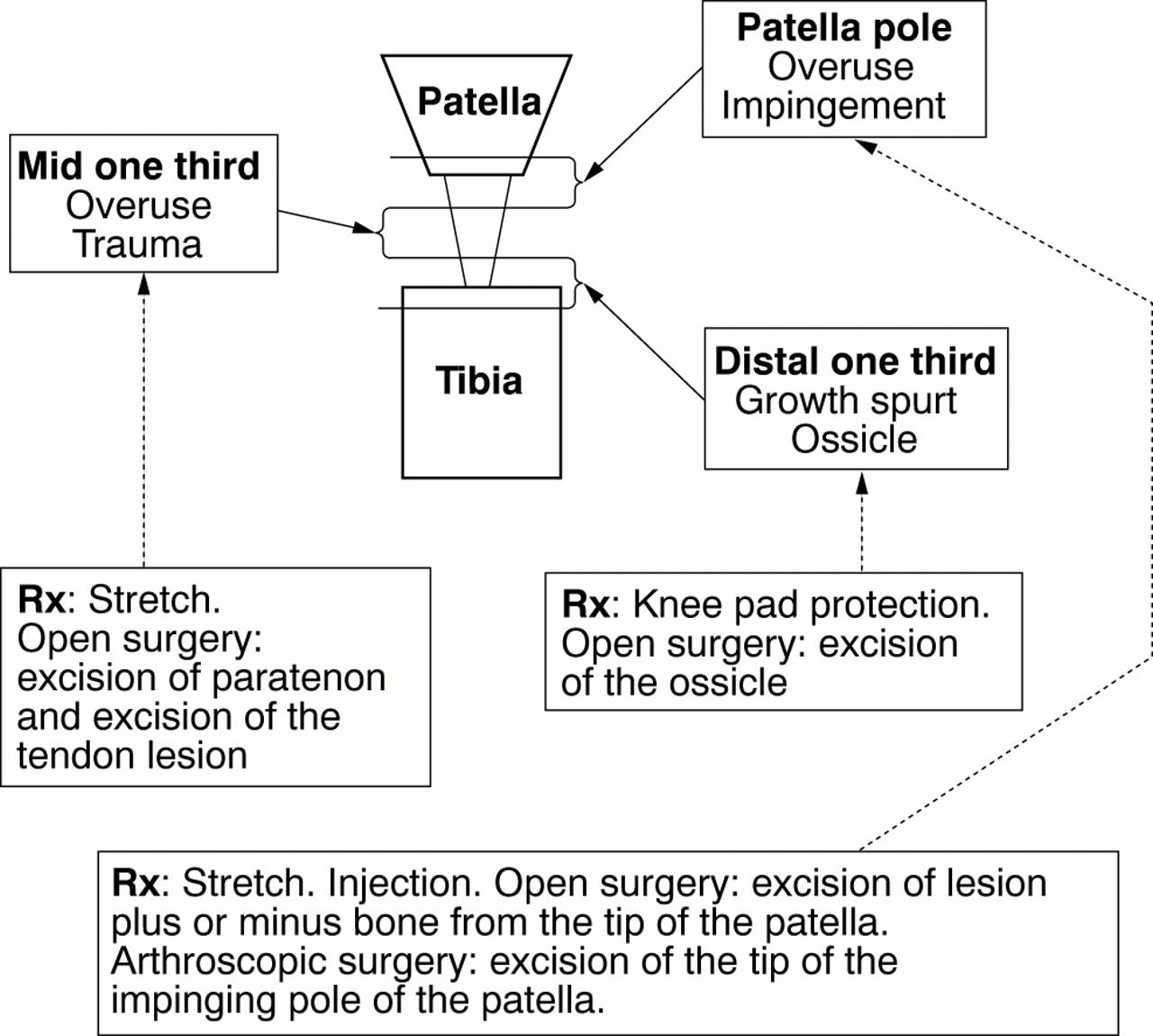 Patellar Dislocation And Lesions Of The Patella Tendon British