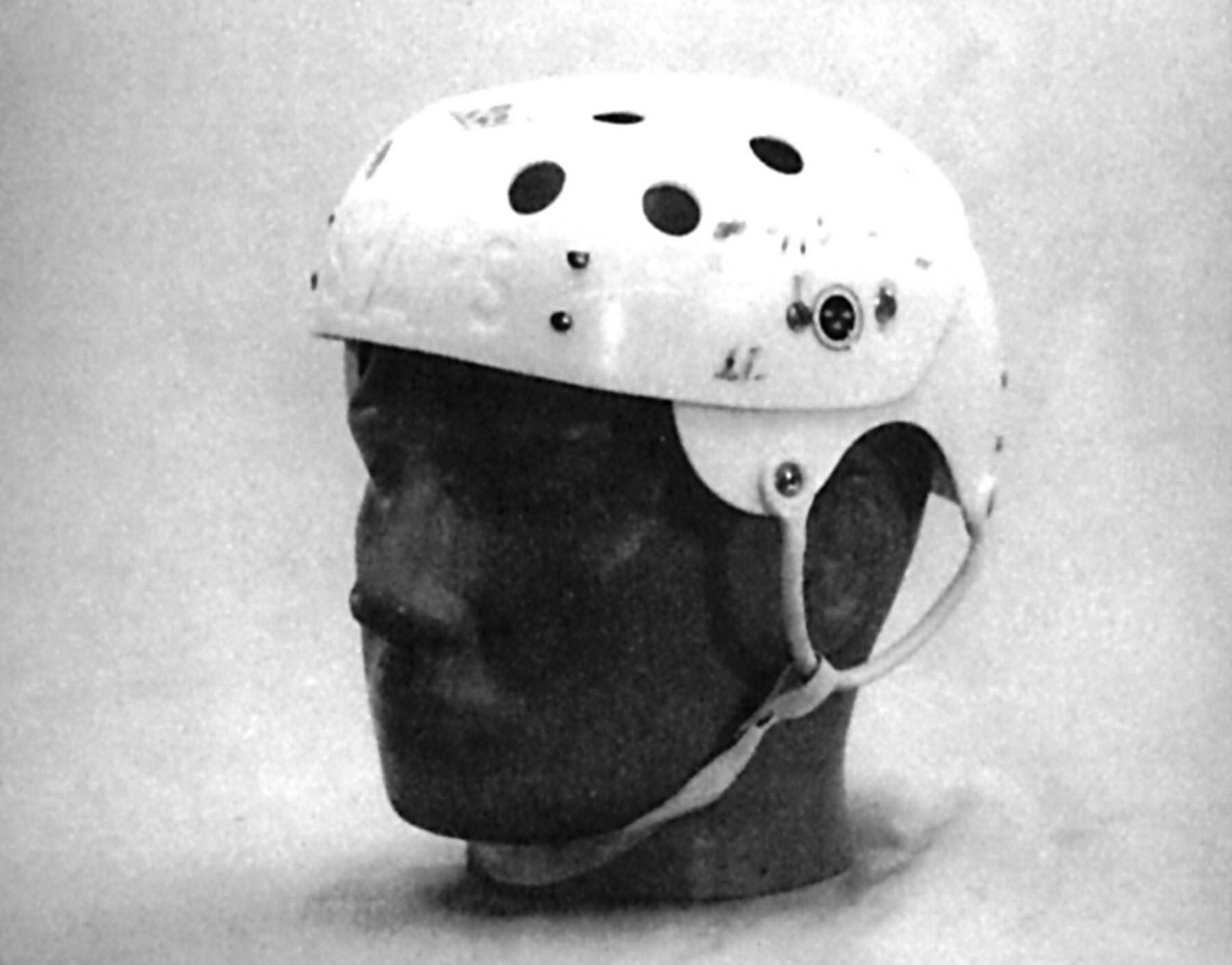 Facial injuries 1963-9195