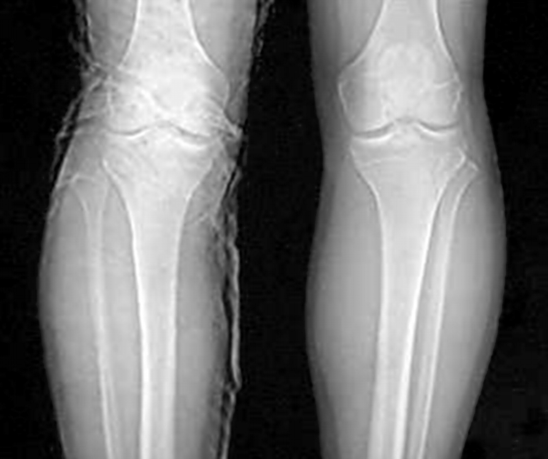 Isolated Dislocation Of The Proximal Tibiofibular Joint In