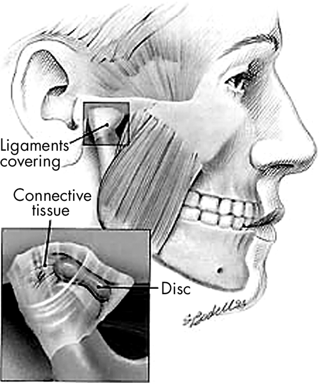 Scuba diving can induce stress of the temporomandibular joint ...