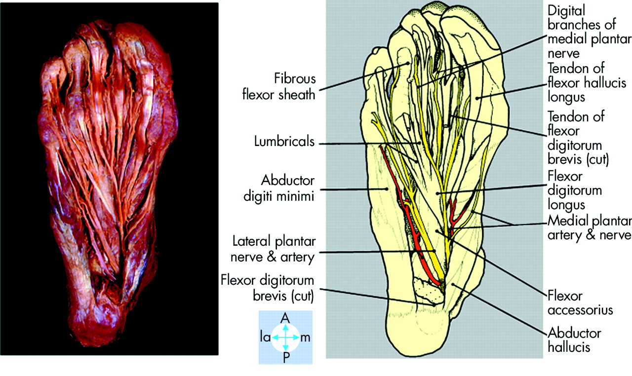 Lateral plantar nerve injury following steroid injection for plantar ...
