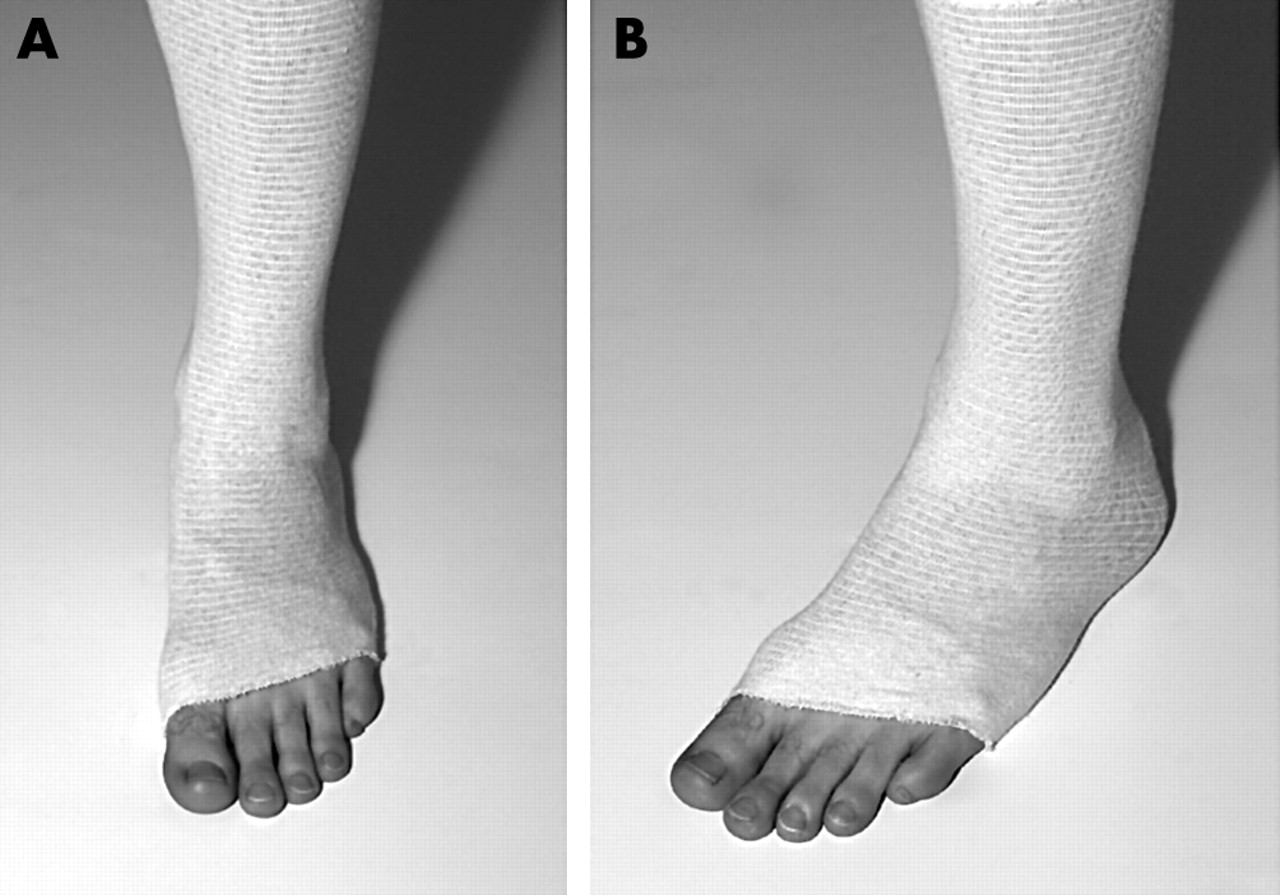 Management Of Ankle Sprains A Randomised Controlled Trial Of The
