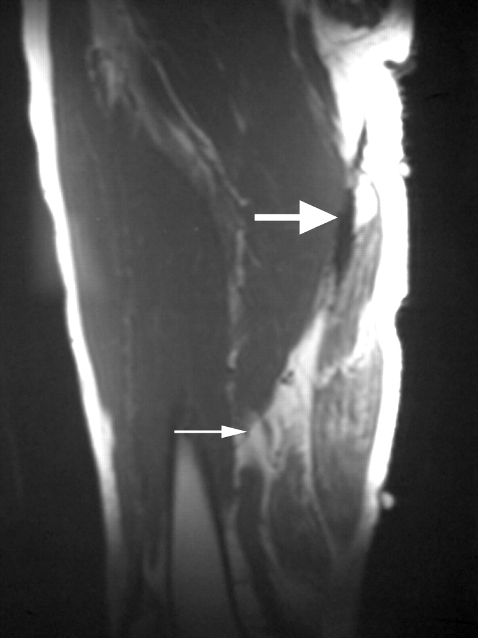 surgical repair of complete proximal hamstring tendon
