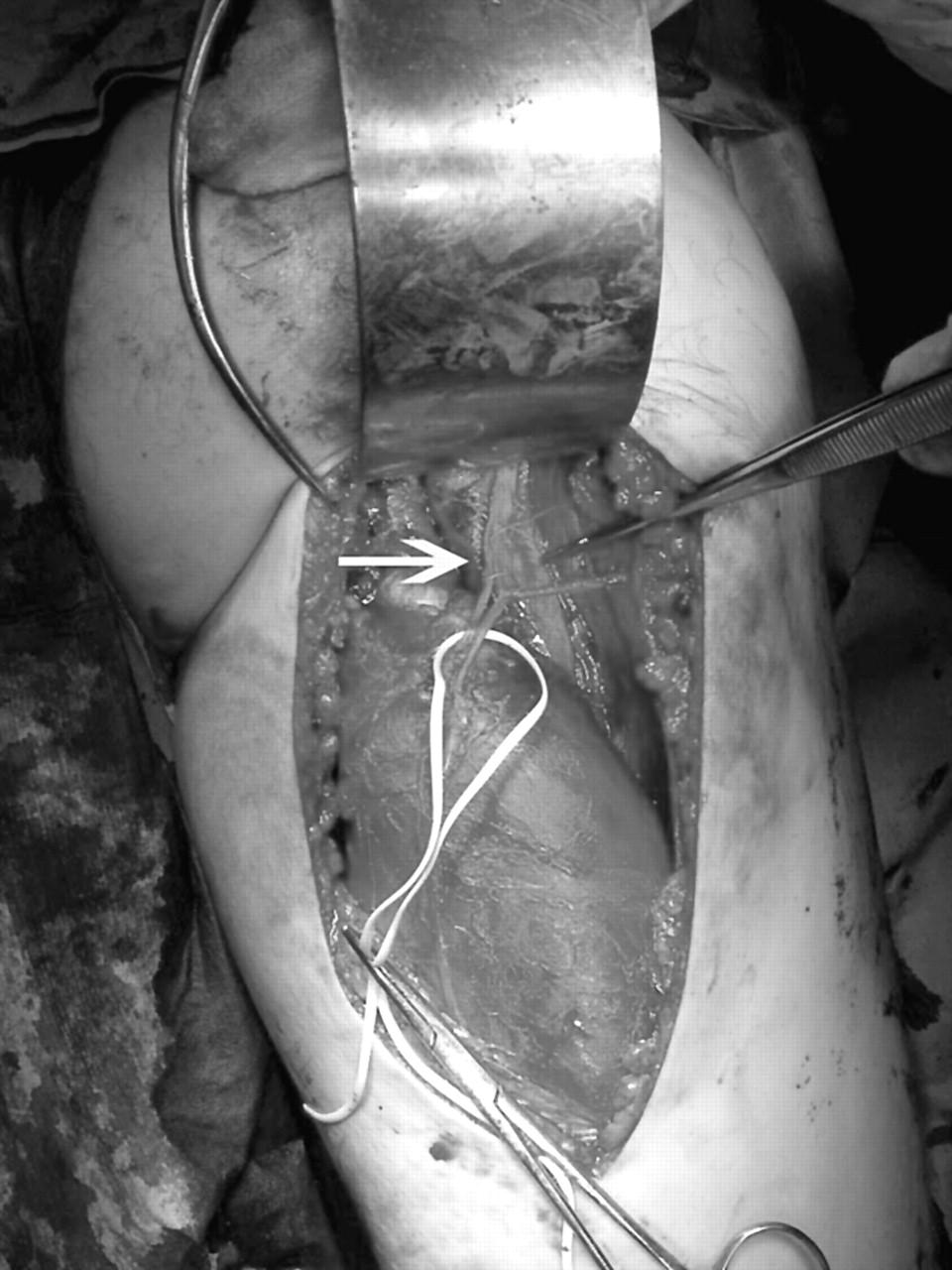 surgical repair of complete proximal hamstring tendon. Black Bedroom Furniture Sets. Home Design Ideas