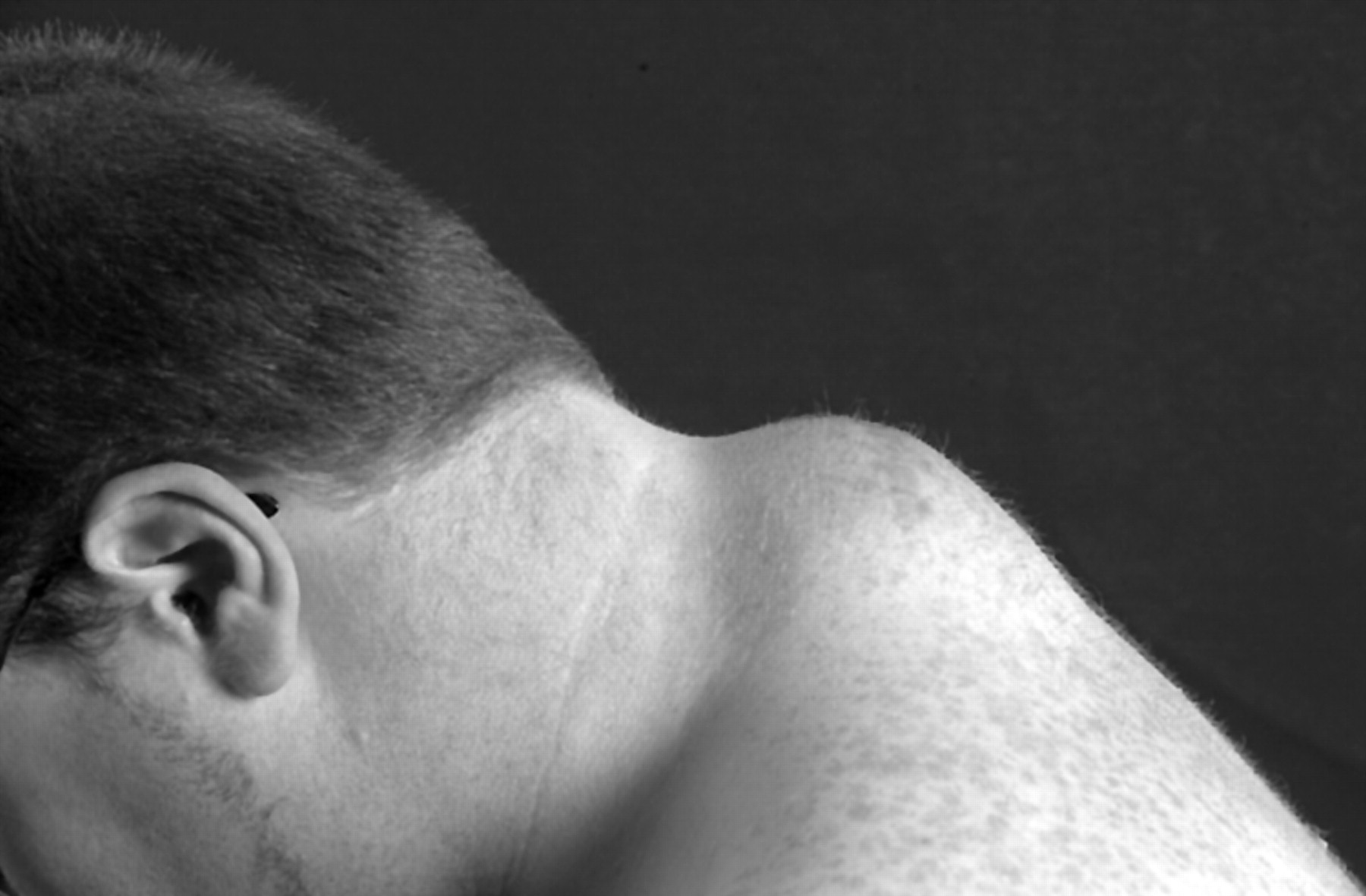Soft tissue neck lumps in rugby union players | British Journal of