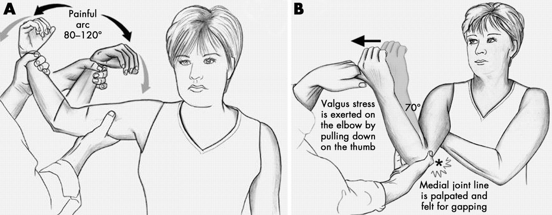 Valgus stress test