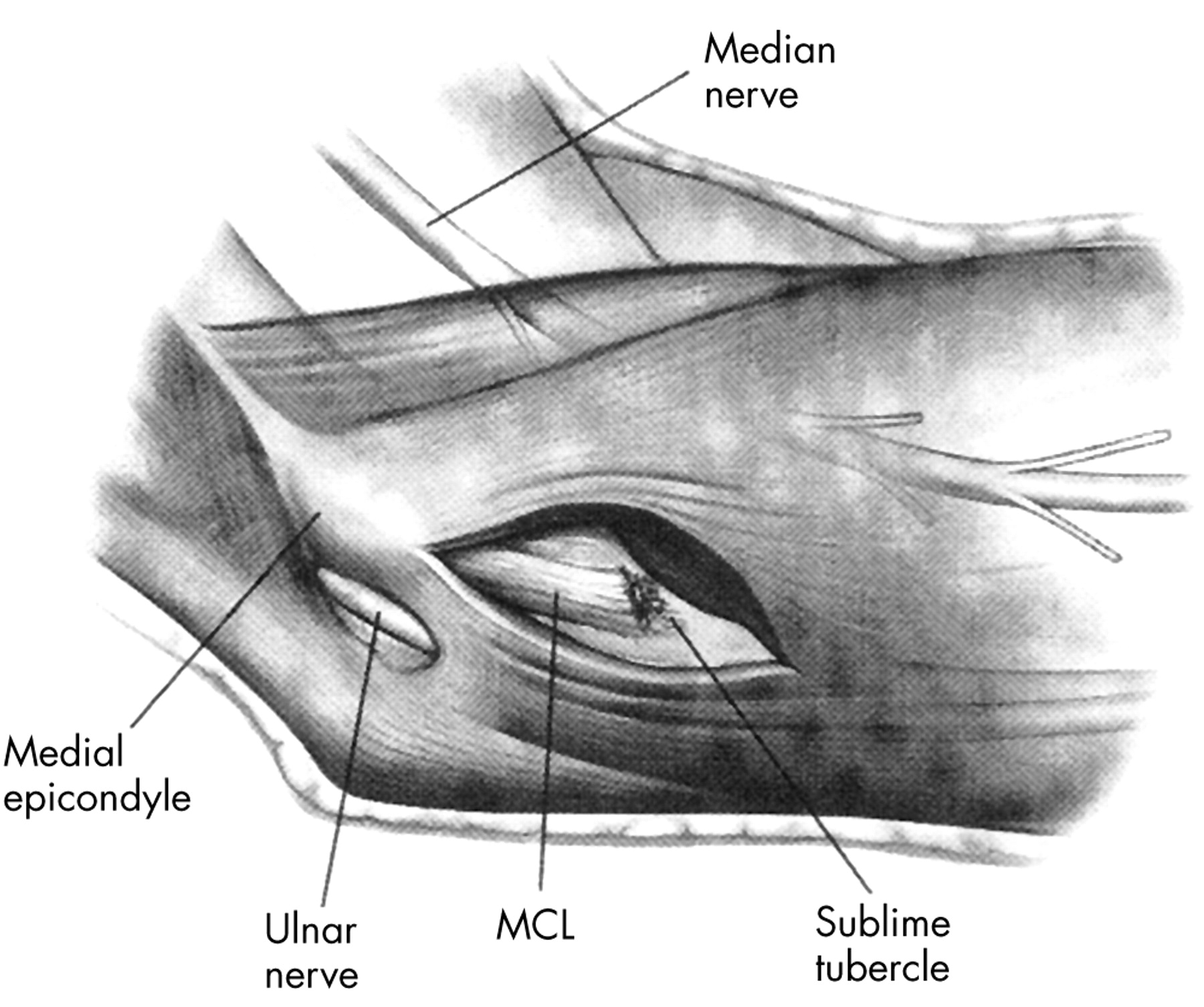 Evolution Of The Treatment Options Of Ulnar Collateral Ligament