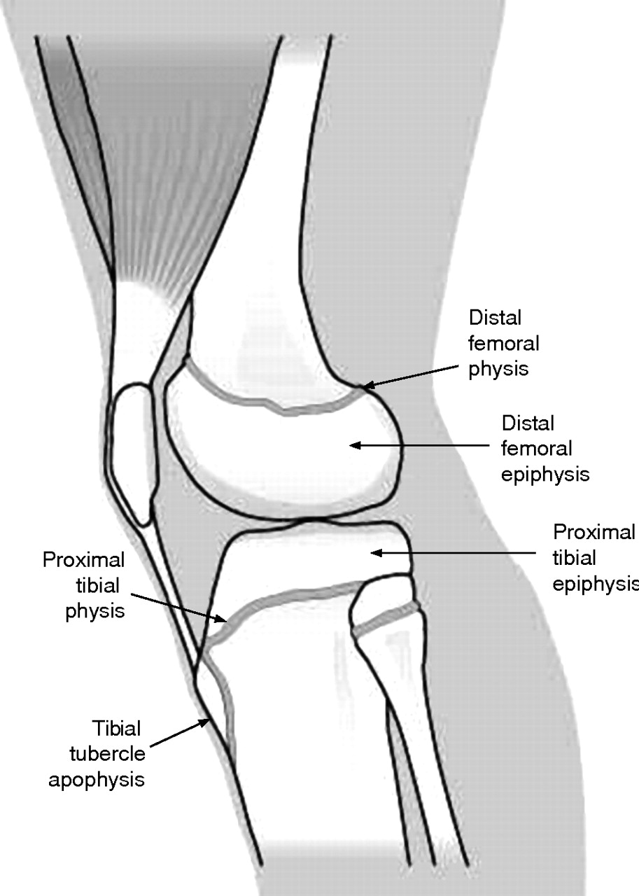 Physeal Injuries In Childrens And Youth Sports Reasons For Concern