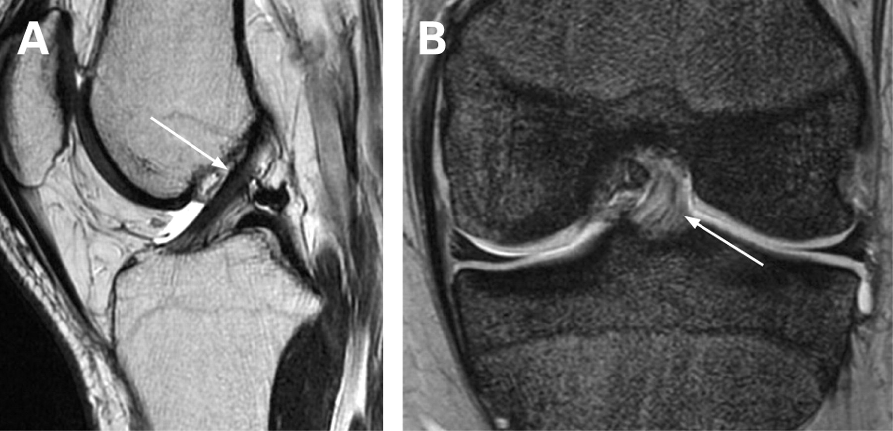 The ABCs of the anterior cruciate ligament: a primer for magnetic ...