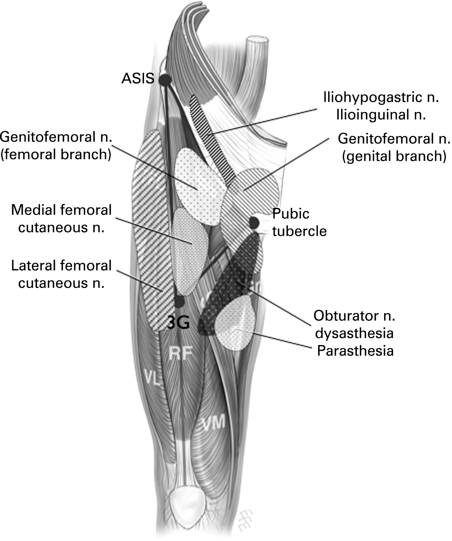 The groin triangle: a patho-anatomical approach to the diagnosis of ...