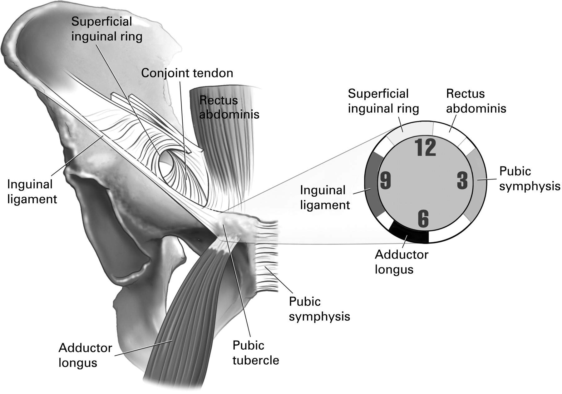 The Groin Triangle A Patho Anatomical Approach To The Diagnosis Of