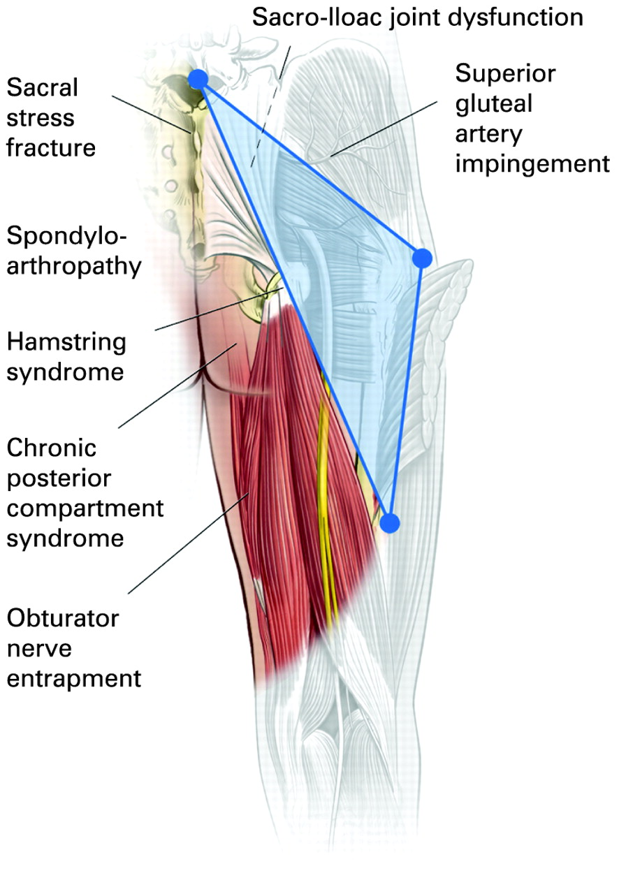 The gluteal triangle: a clinical patho-anatomical approach to the ...