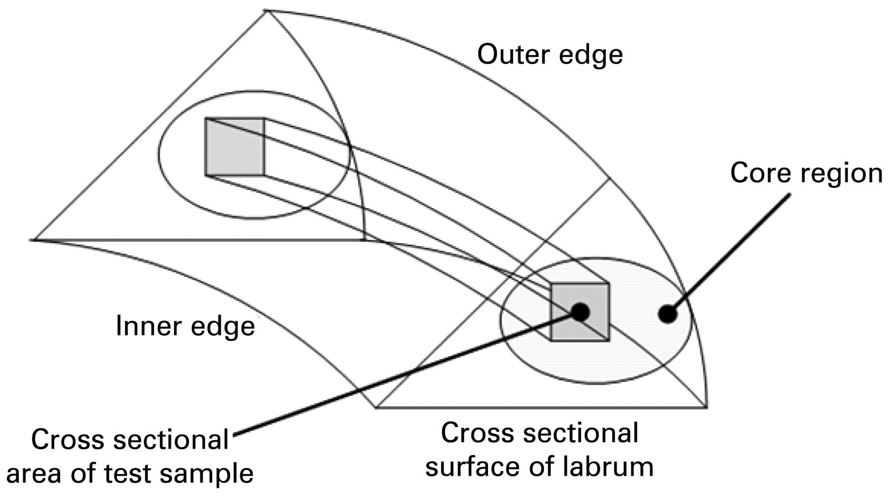 a biomechanical basis for tears of the human acetabular labrum