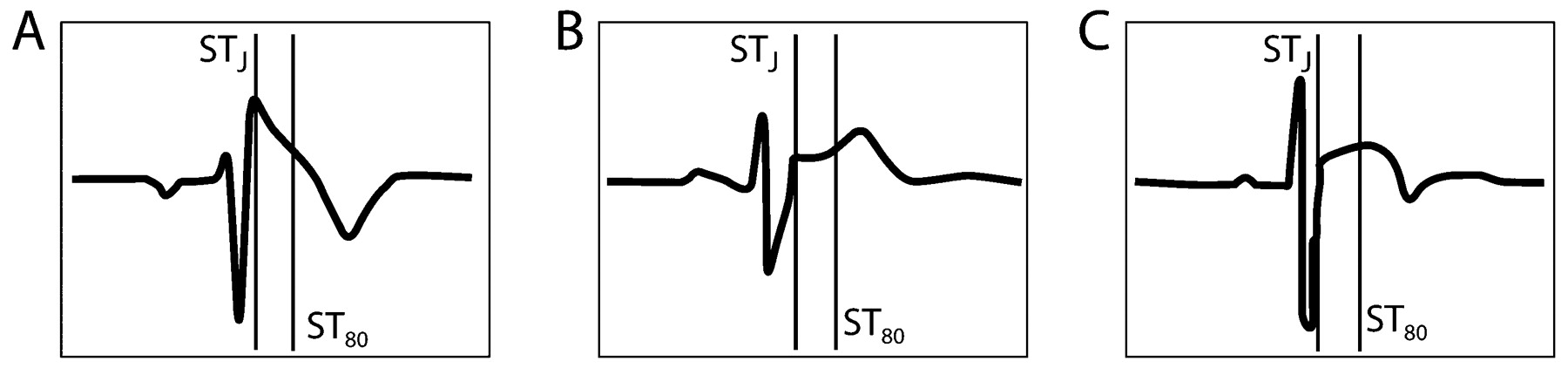 12 Lead Ecg In The Athlete Physiological Versus Pathological
