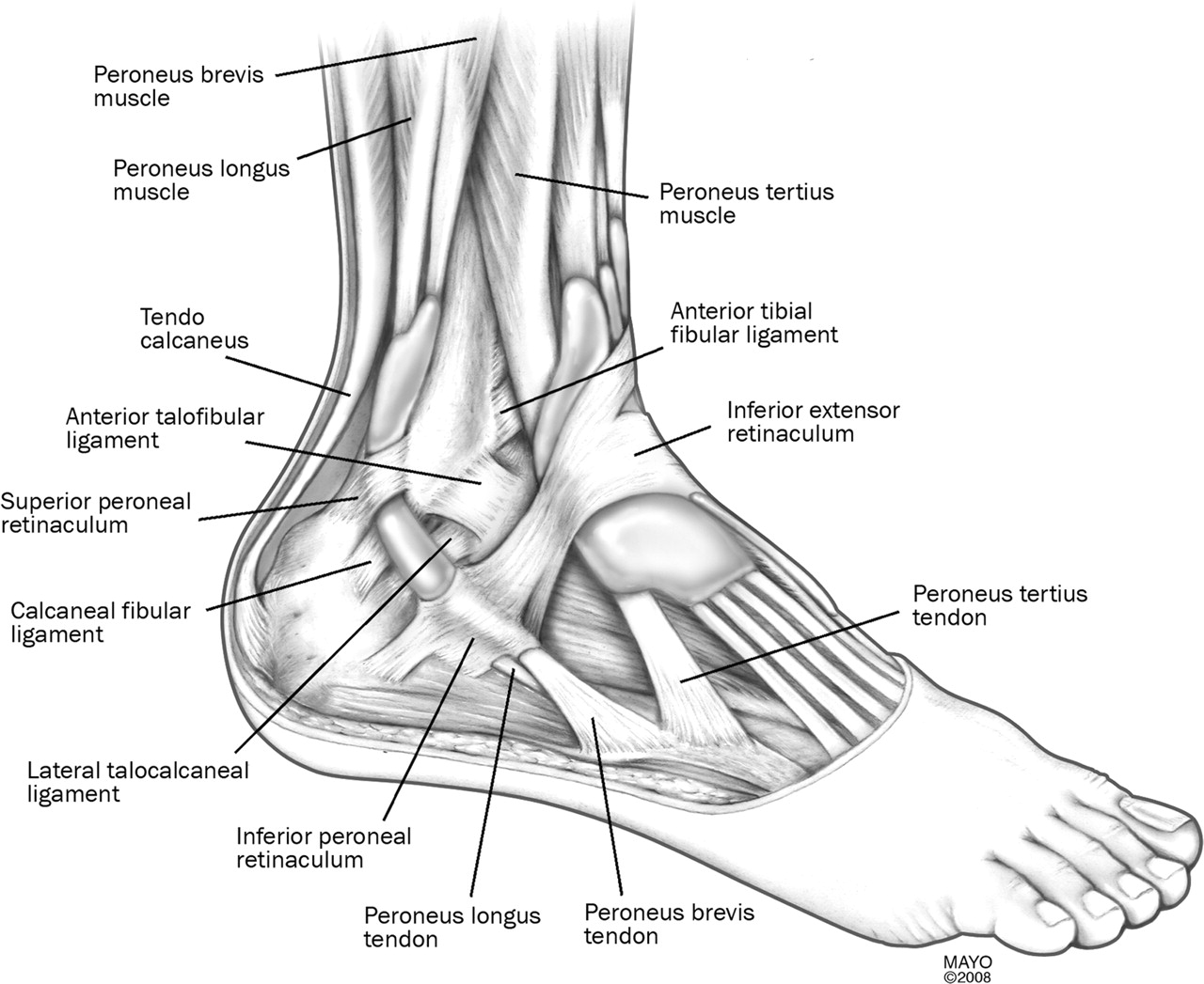 Peroneal tendon subluxation: the other lateral ankle