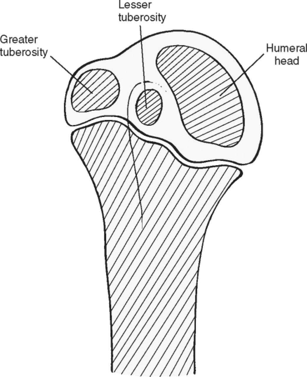 Shoulder injuries in skeletally immature throwers: review and ...