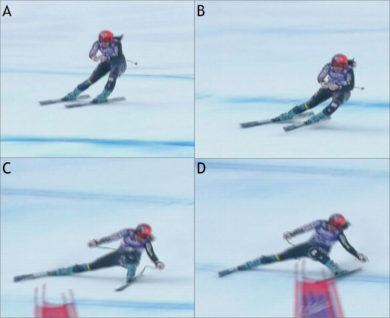 ACL Injuries and Downhill Skiing