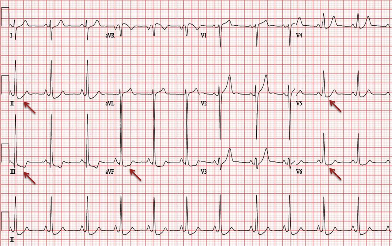 Abnormal electrocardiographic findings in athletes: recognising