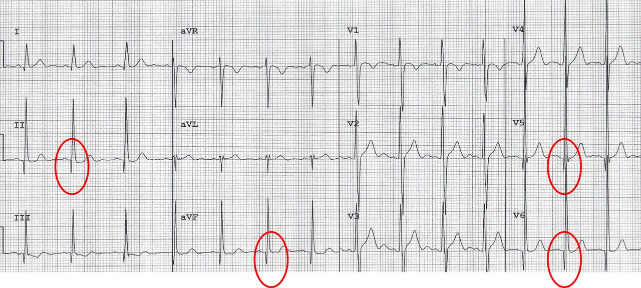 Abnormal electrocardiographic findings in athletes