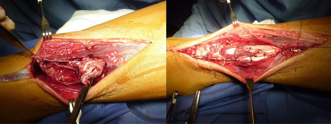 Simultaneous Bilateral Rupture Of Achilles Tendon Asymptomatic