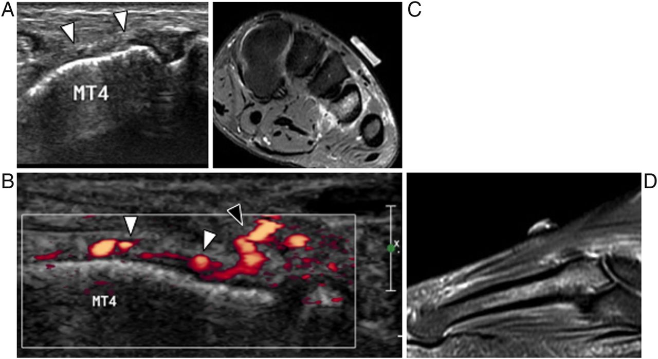 Ultrasonography Of Fractures In Sports Medicine British Journal Of