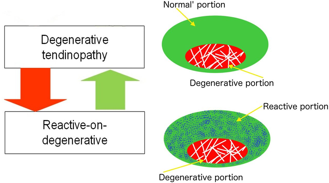 Revisiting The Continuum Model Of Tendon Pathology What Is Its