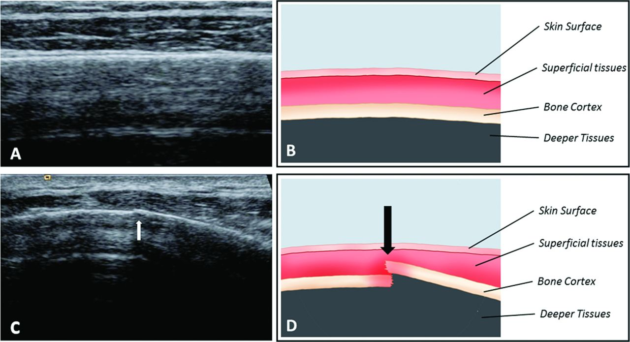Imaging Of Rib Stress Fractures In Elite Rowers  The