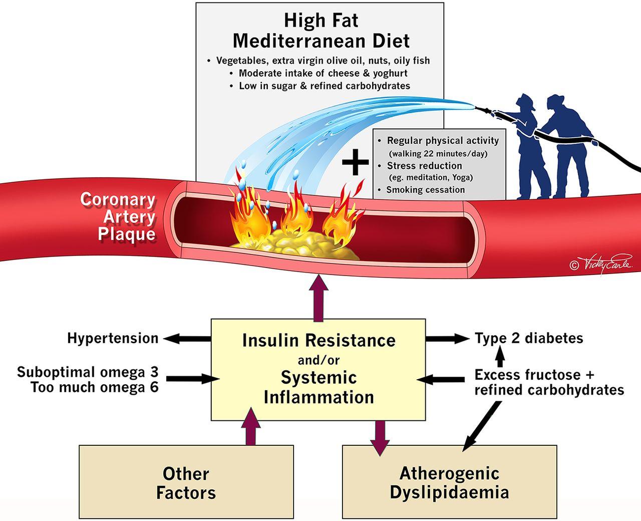 La inflamación crónica de las arterias coronarias es la causa de los infartos, no las grasas saturadas y el colesterol.