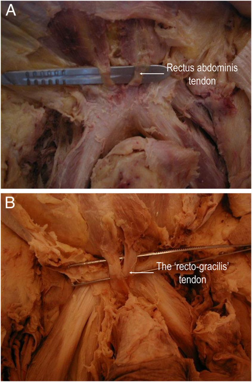 Anatomical And Morphological Characteristics May Explain Why Groin