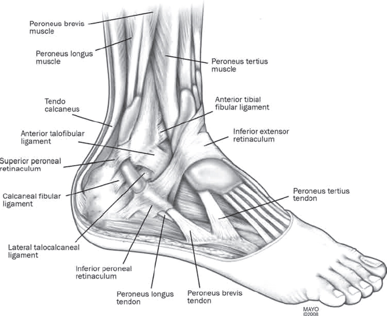 Peroneal tendon subluxation: the other lateral ankle injury ...