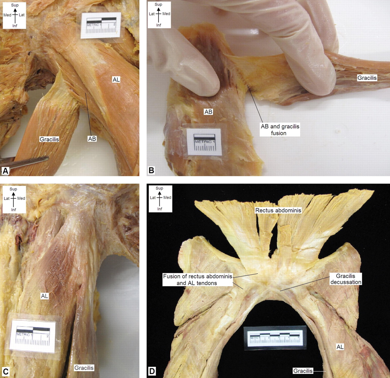 New insights into the proximal tendons of adductor longus, adductor ...