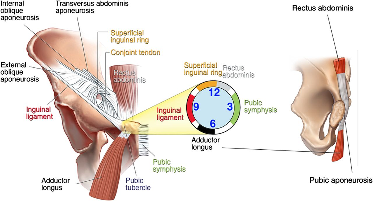 Athletic groin pain (part 1): a prospective anatomical diagnosis of ...